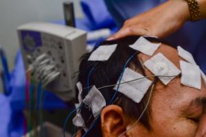 eletroencefalograma com laudo
