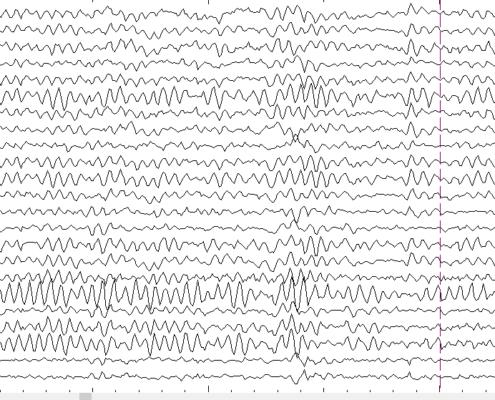 eletroencefalograma exemplo de traçado com interferência de fator externo