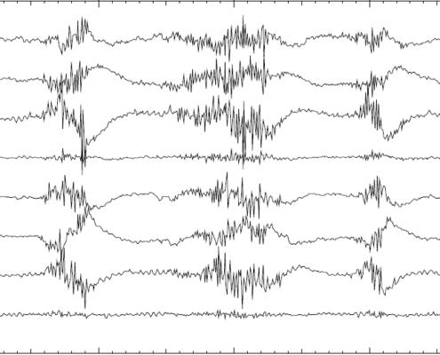 eletroencefalograma exemplo de traçado correto sem interferência