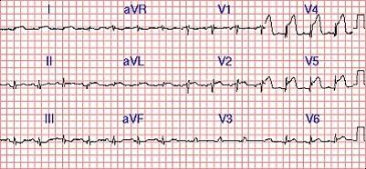 ondas de exame de traçado de eletrocardiograma